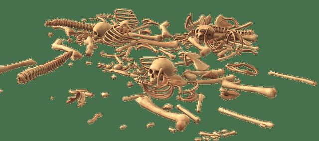 Osteoarthritis אוסטאו ארטריטיס